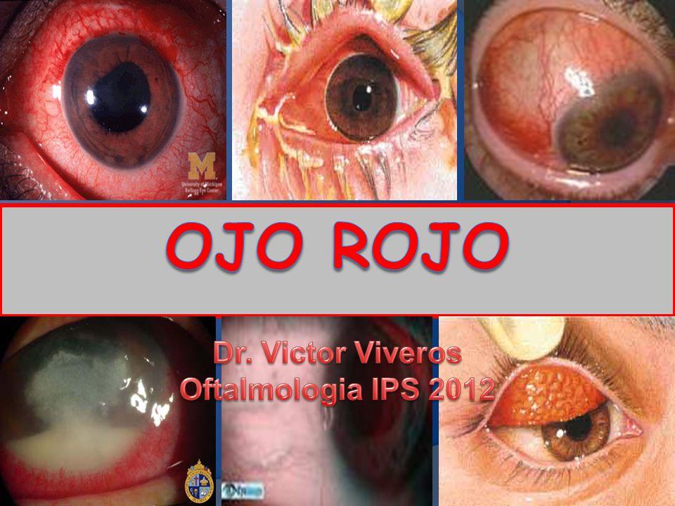 OJO ROJO Dr. Victor Viveros Oftalmologia IPS 2012