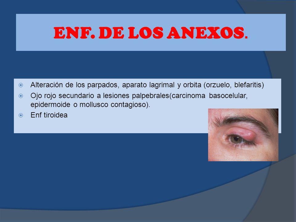 ENF. DE LOS ANEXOS. Alteración de los parpados, aparato lagrimal y orbita (orzuelo, blefaritis)