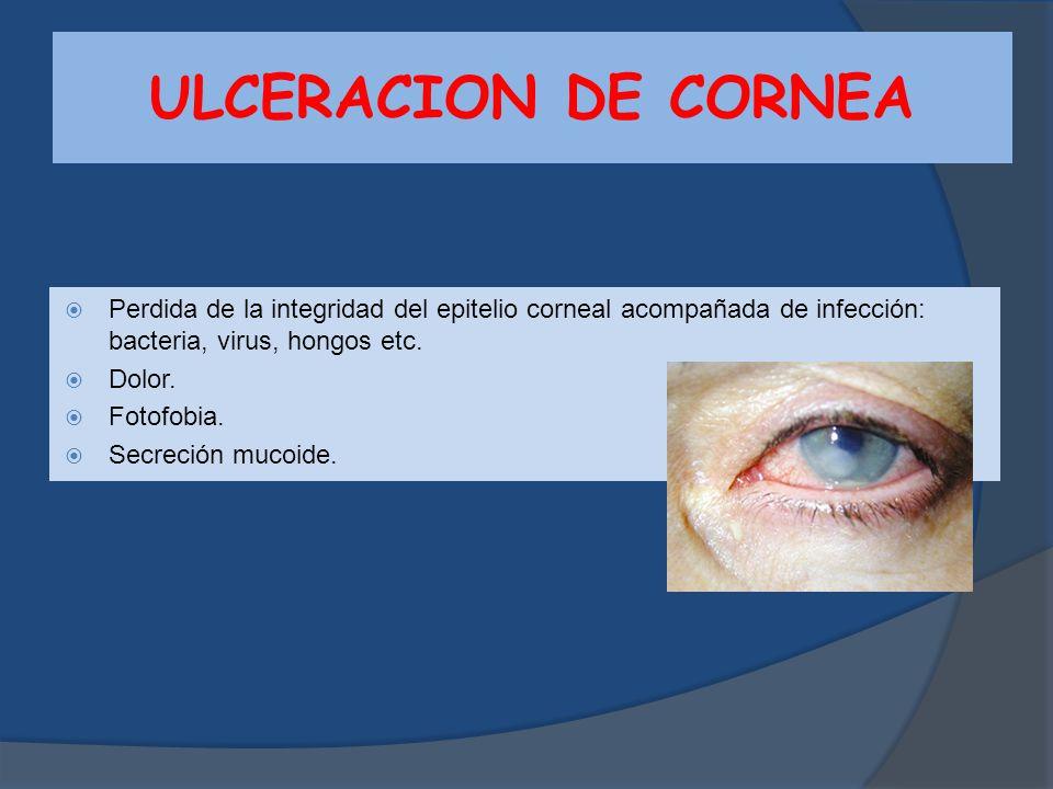 ULCERACION DE CORNEA Perdida de la integridad del epitelio corneal acompañada de infección: bacteria, virus, hongos etc.