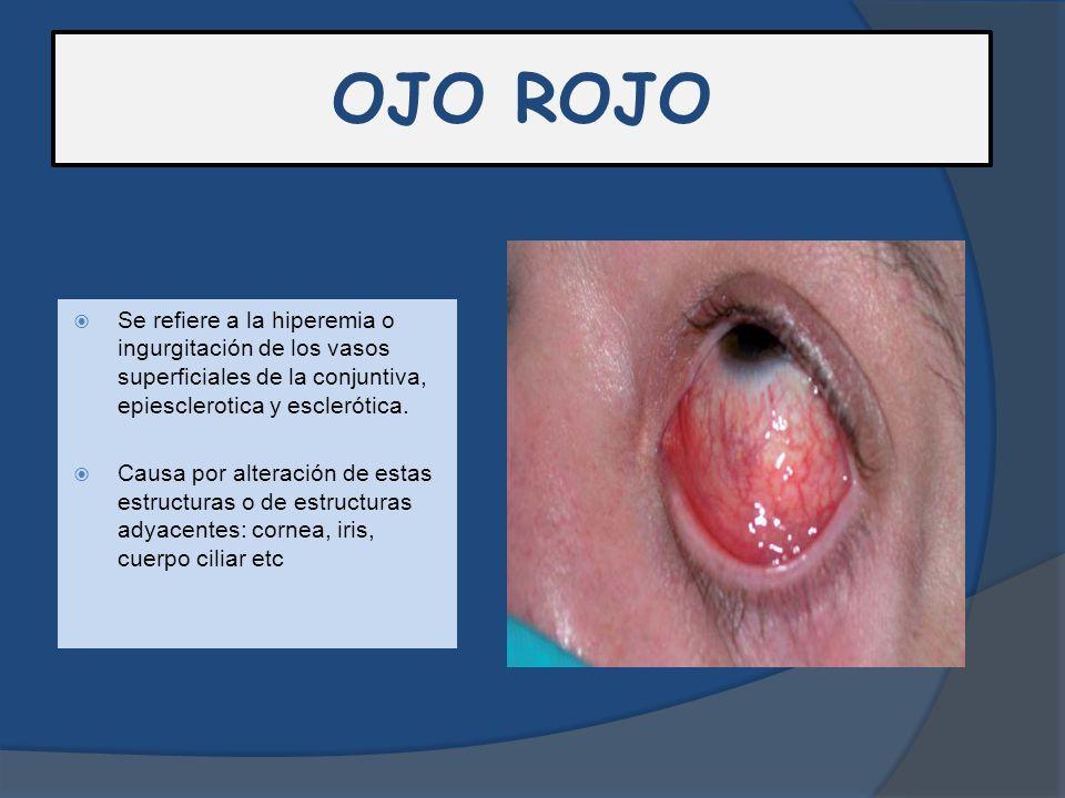 OJO ROJO Se refiere a la hiperemia o ingurgitación de los vasos superficiales de la conjuntiva, epiesclerotica y esclerótica.