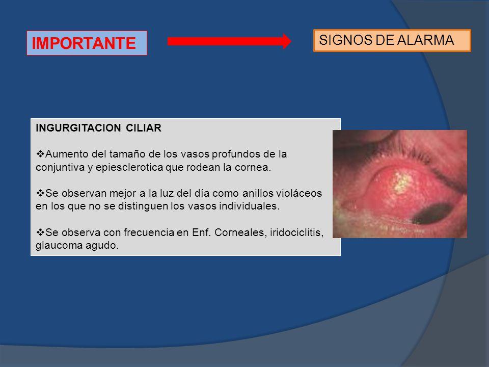 IMPORTANTE SIGNOS DE ALARMA INGURGITACION CILIAR