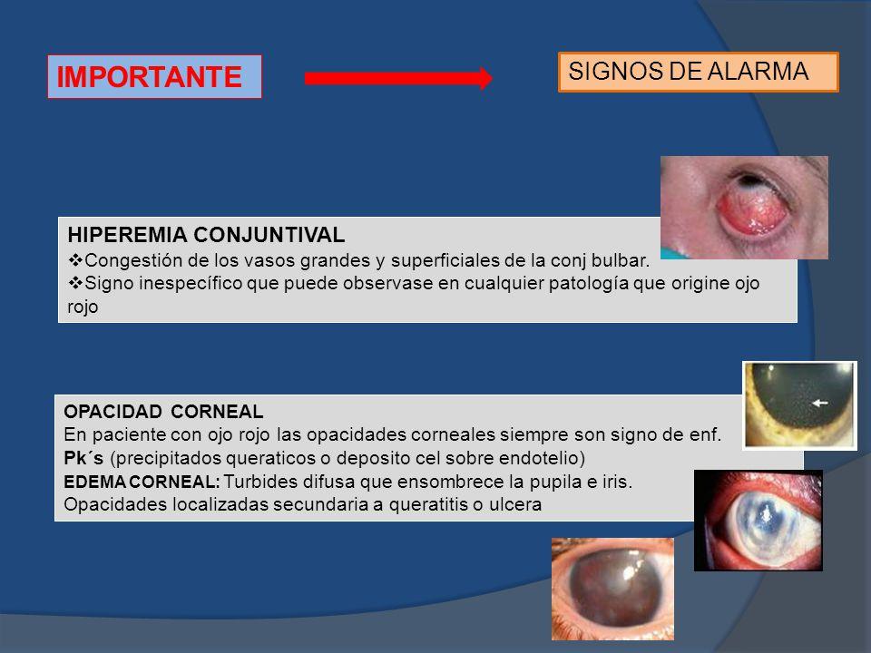 IMPORTANTE SIGNOS DE ALARMA HIPEREMIA CONJUNTIVAL