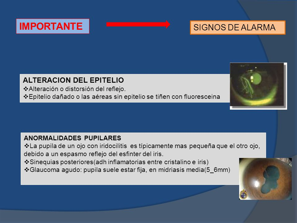 IMPORTANTE SIGNOS DE ALARMA ALTERACION DEL EPITELIO