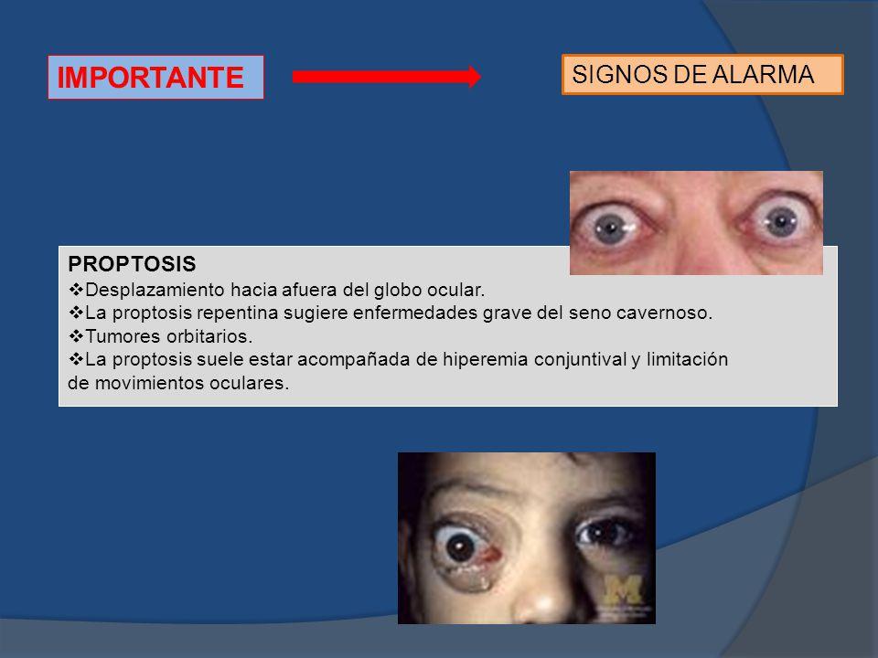IMPORTANTE SIGNOS DE ALARMA PROPTOSIS