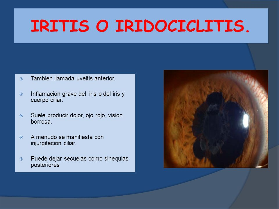 IRITIS O IRIDOCICLITIS.
