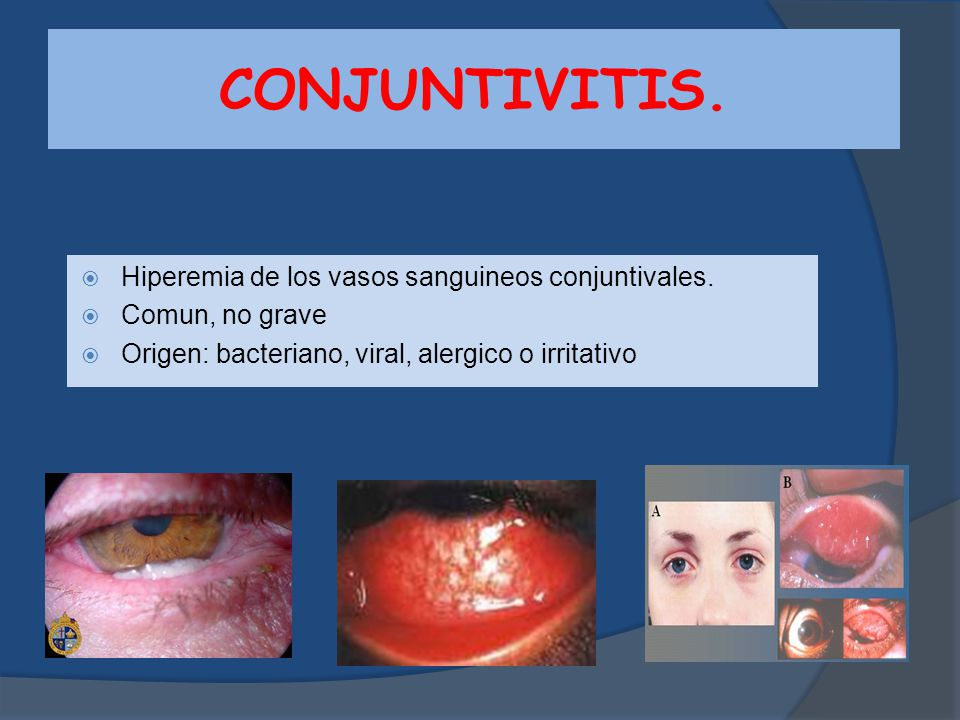 CONJUNTIVITIS. Hiperemia de los vasos sanguineos conjuntivales.