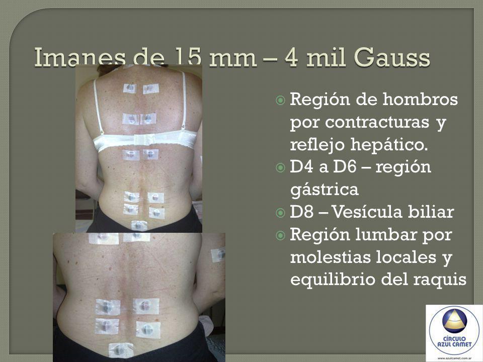 Imanes de 15 mm – 4 mil Gauss Región de hombros por contracturas y reflejo hepático. D4 a D6 – región gástrica.