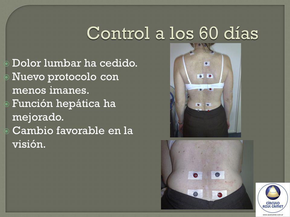 Control a los 60 días Dolor lumbar ha cedido.