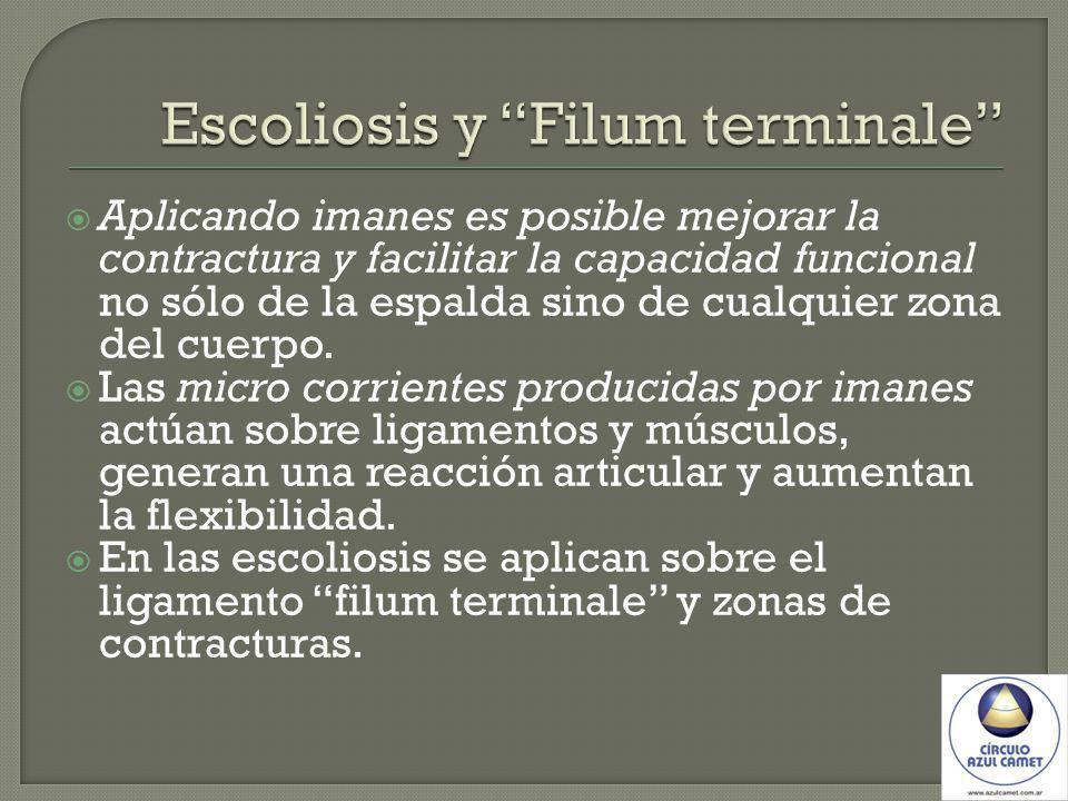 Escoliosis y Filum terminale