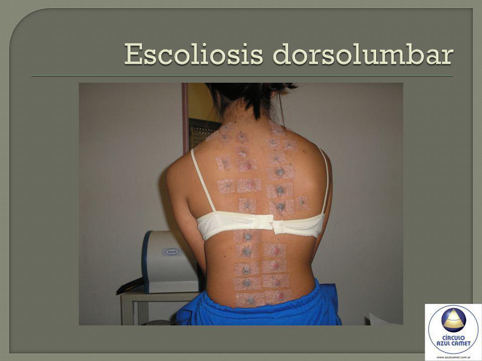 Escoliosis dorsolumbar