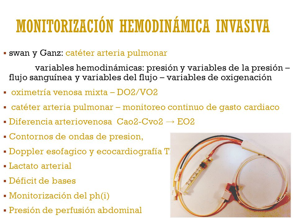 Monitorización hemodinámica invasiva