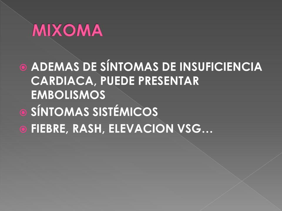 MIXOMA ADEMAS DE SÍNTOMAS DE INSUFICIENCIA CARDIACA, PUEDE PRESENTAR EMBOLISMOS. SÍNTOMAS SISTÉMICOS.