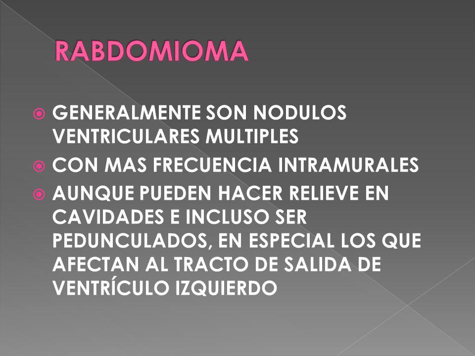 RABDOMIOMA GENERALMENTE SON NODULOS VENTRICULARES MULTIPLES