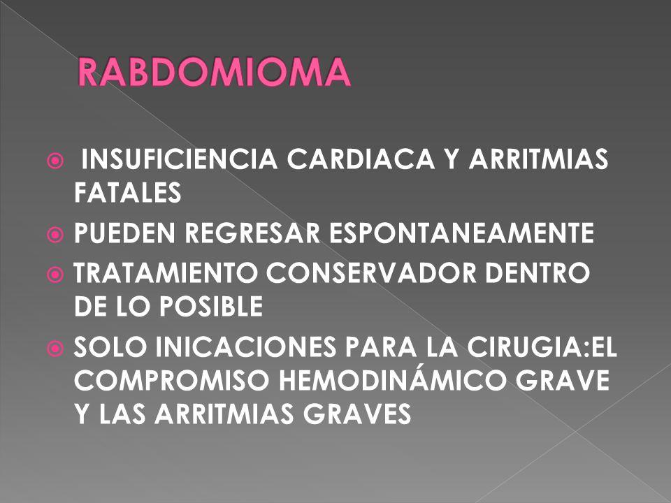 RABDOMIOMA INSUFICIENCIA CARDIACA Y ARRITMIAS FATALES