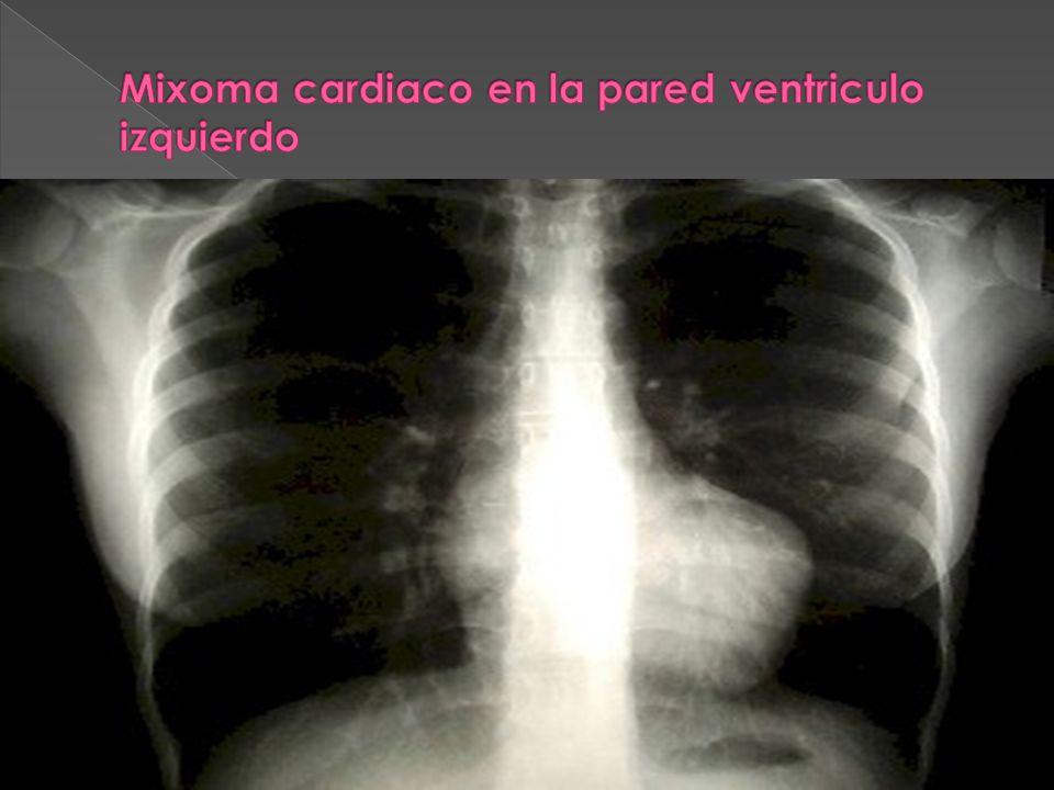 Mixoma cardiaco en la pared ventriculo izquierdo