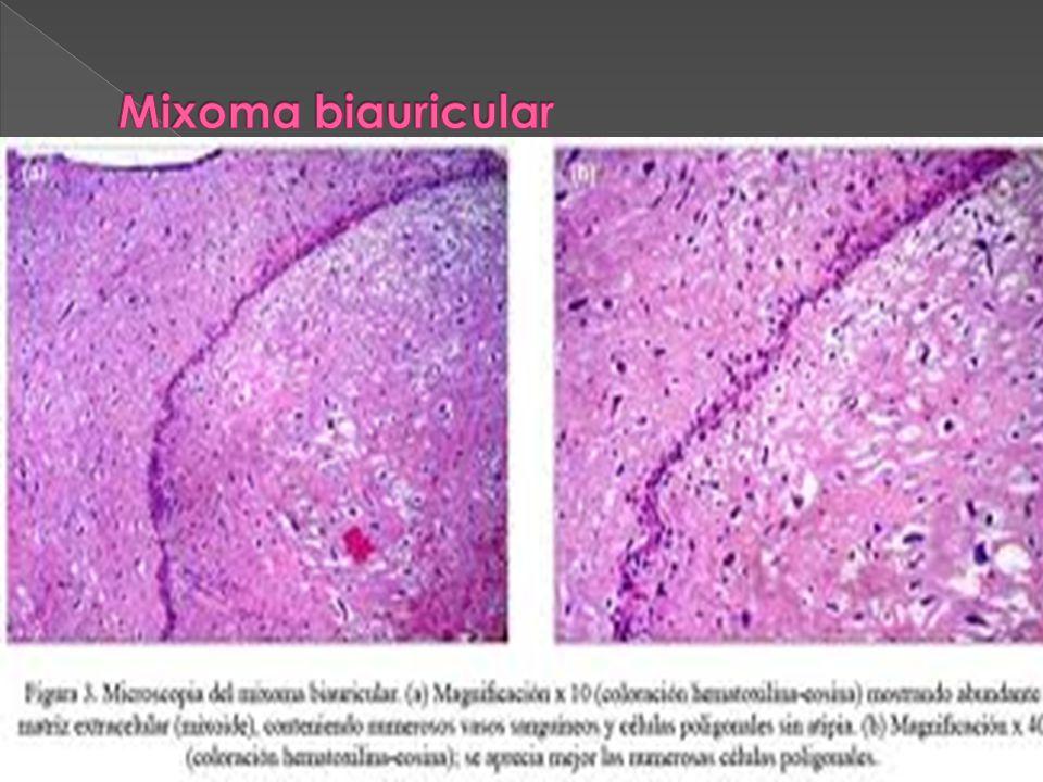 Mixoma biauricular