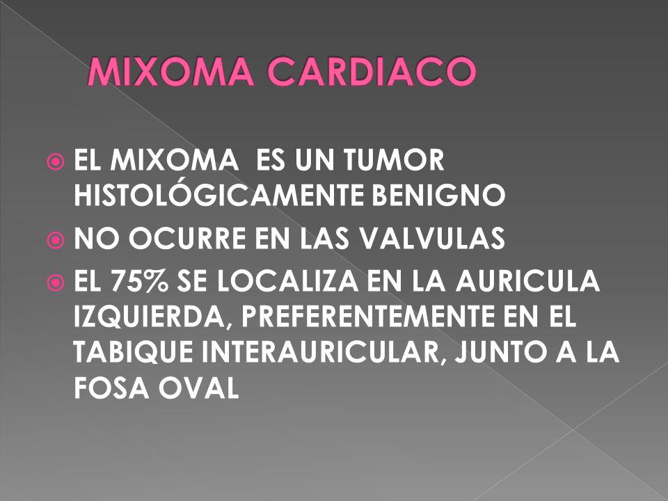 MIXOMA CARDIACO EL MIXOMA ES UN TUMOR HISTOLÓGICAMENTE BENIGNO