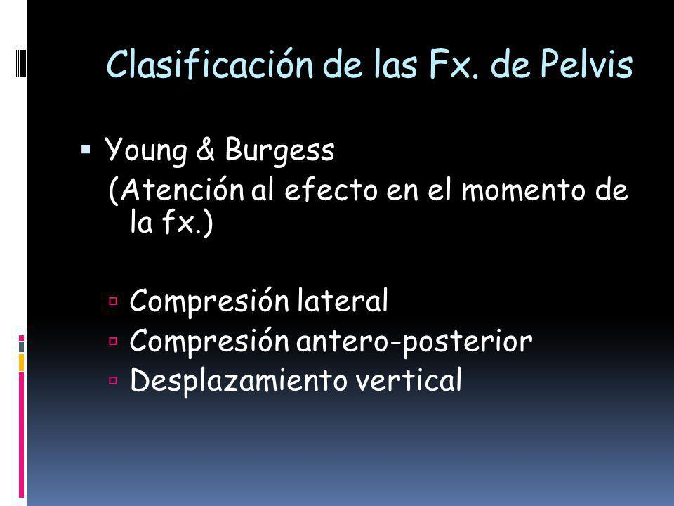 Clasificación de las Fx. de Pelvis
