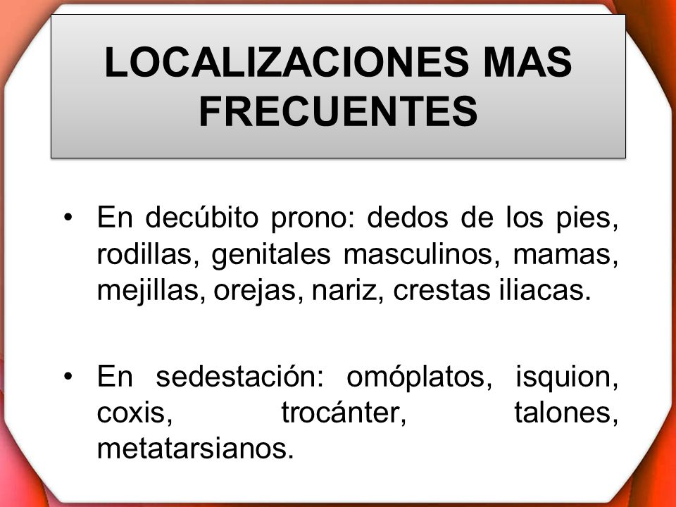 LOCALIZACIONES MAS FRECUENTES