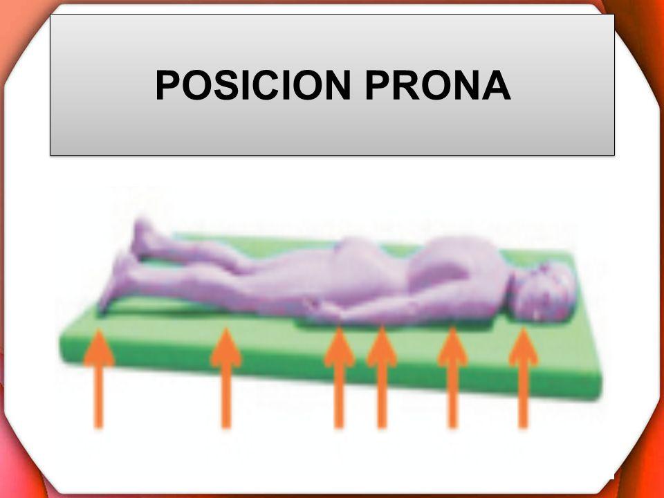 POSICION PRONA