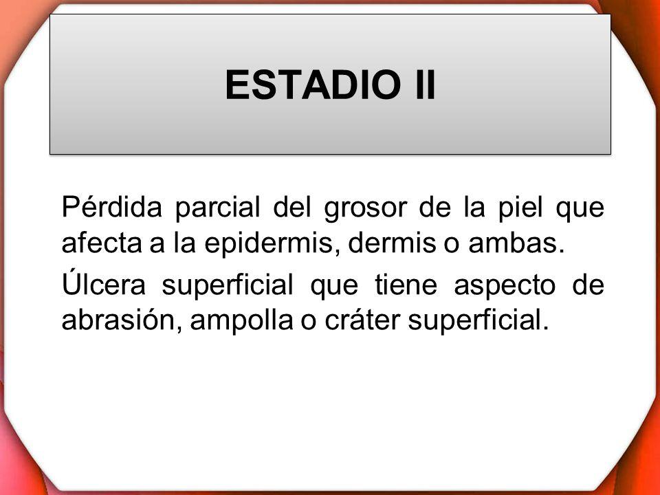 ESTADIO II Pérdida parcial del grosor de la piel que afecta a la epidermis, dermis o ambas.