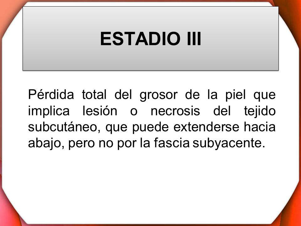 ESTADIO III