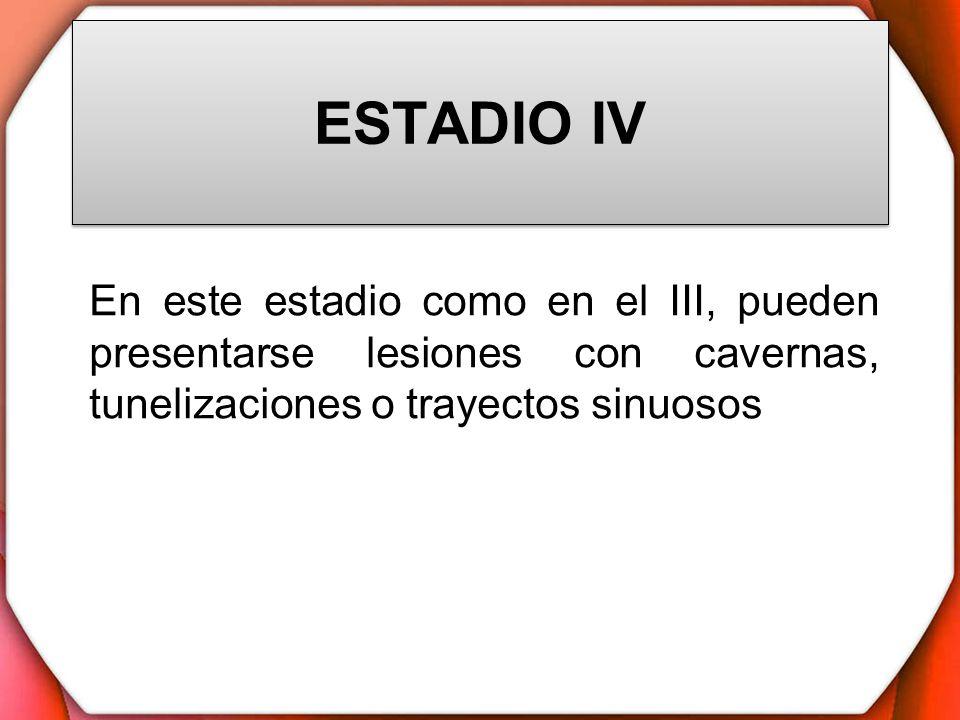 ESTADIO IV En este estadio como en el III, pueden presentarse lesiones con cavernas, tunelizaciones o trayectos sinuosos.