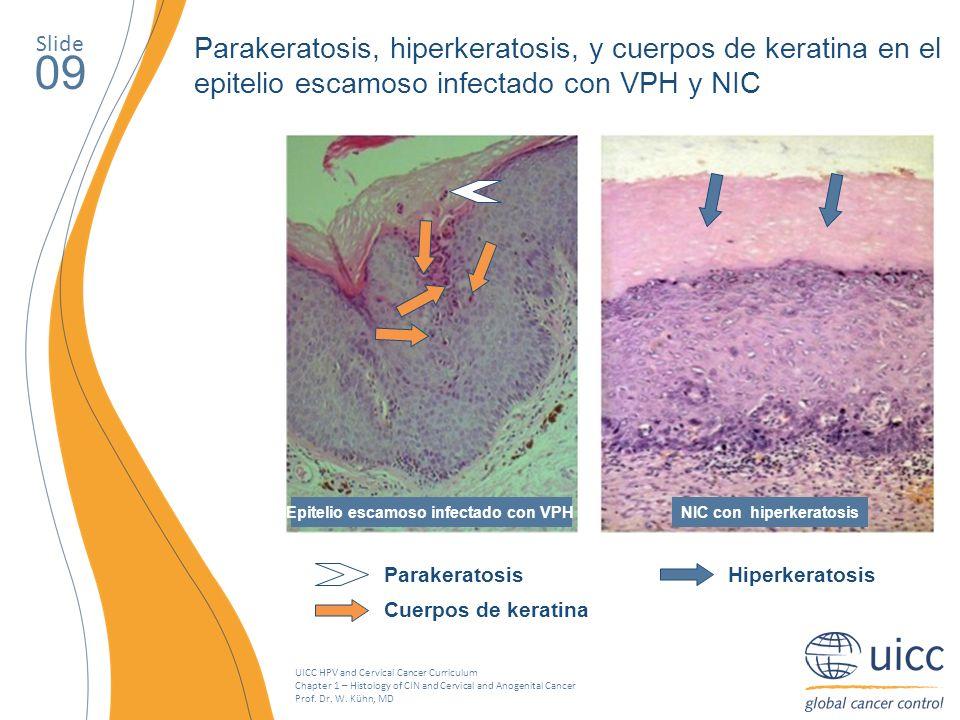 NIC con hiperkeratosis