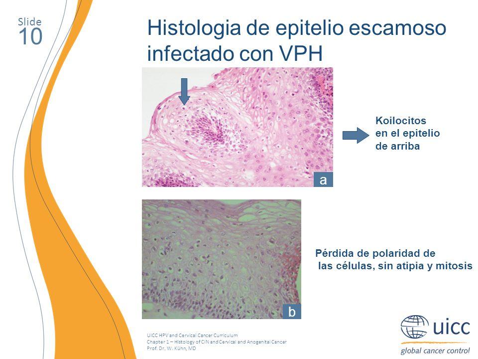 10 Histologia de epitelio escamoso infectado con VPH a b Slide