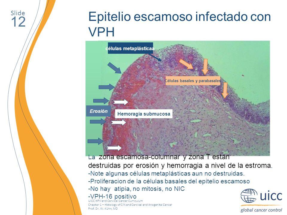 Células basales y parabasales células metaplásticaa