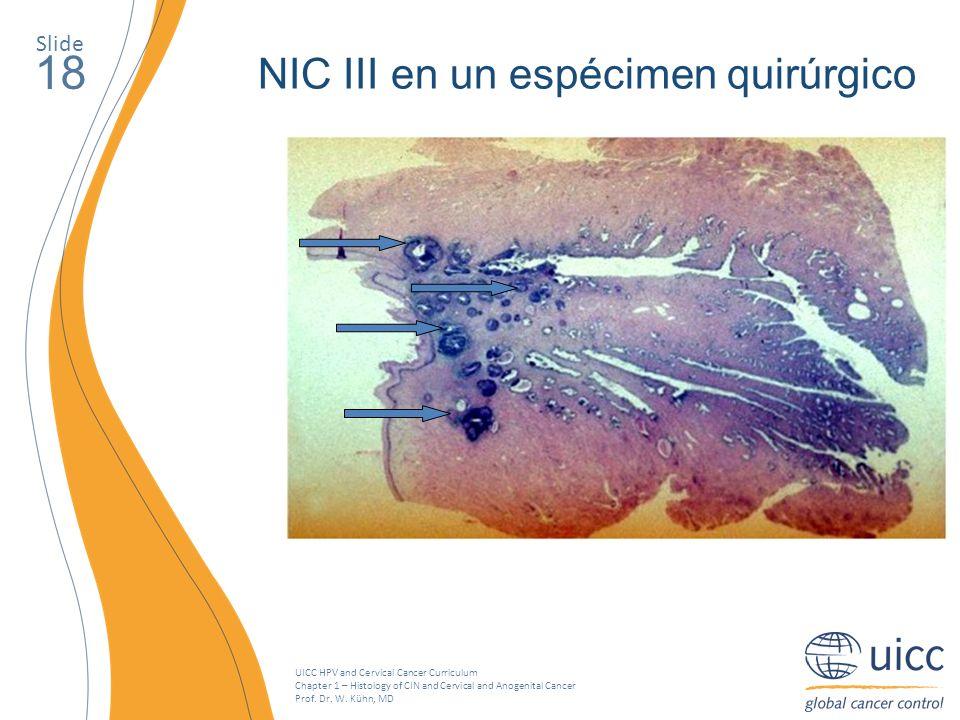 18 NIC III en un espécimen quirúrgico Slide