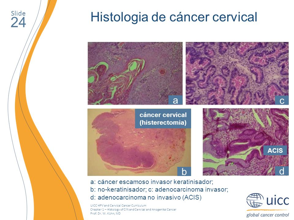cáncer cervical (histerectomia)