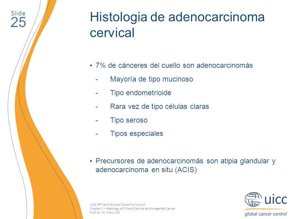 25 Histologia de adenocarcinoma cervical Slide