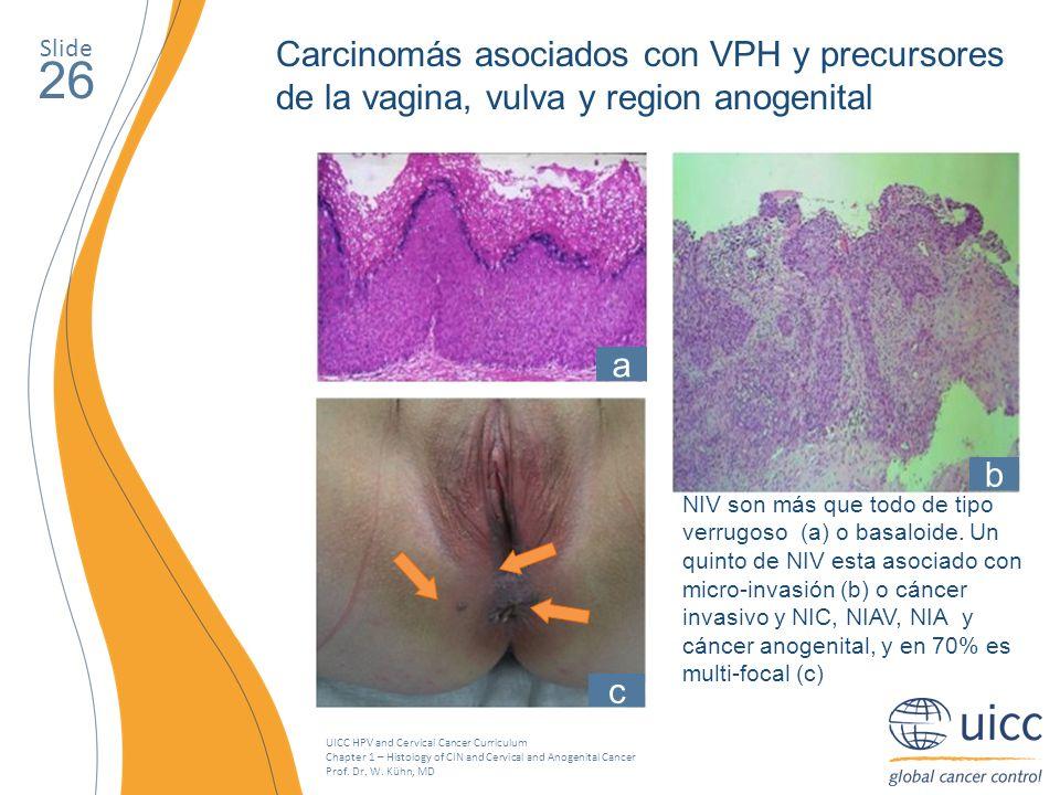 SlideCarcinomás asociados con VPH y precursores de la vagina, vulva y region anogenital. 26. a. b. c.