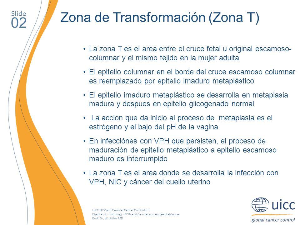 02 Zona de Transformación (Zona T) Slide
