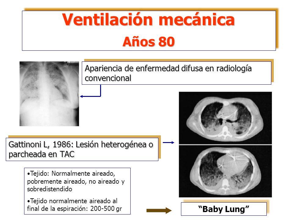 Ventilación mecánica Años 80