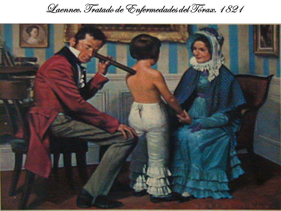 Laennec. Tratado de Enfermedades del Tórax. 1821