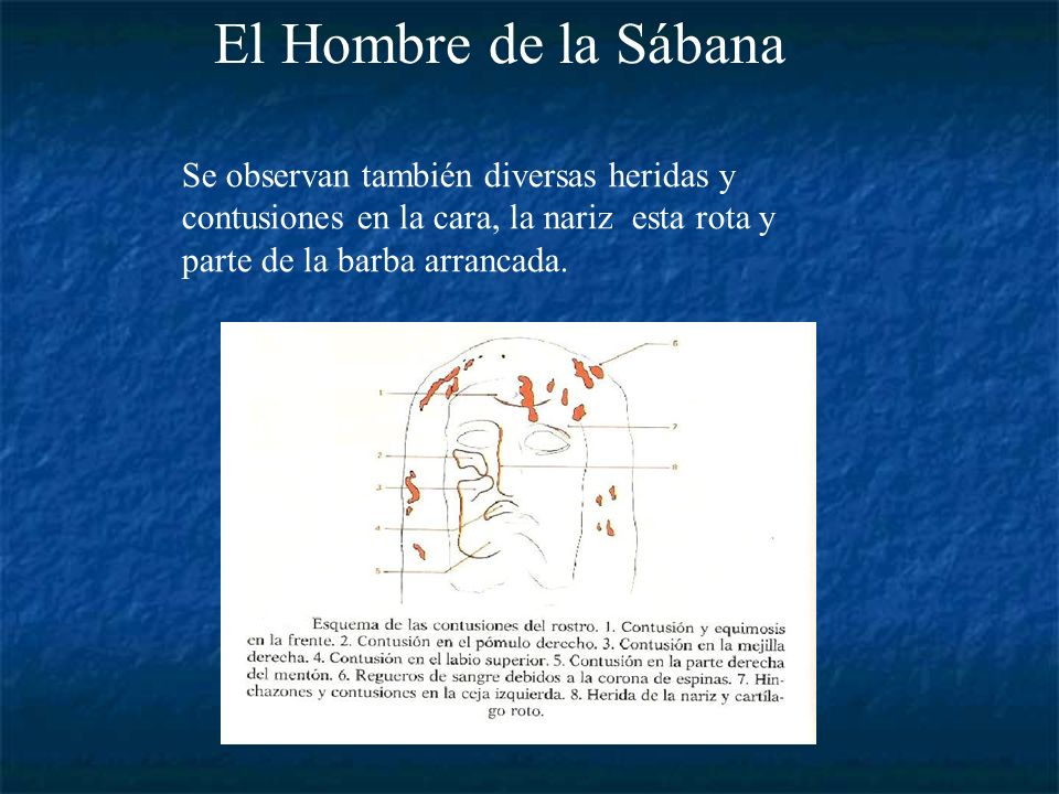 El Hombre de la SábanaSe observan también diversas heridas y contusiones en la cara, la nariz esta rota y parte de la barba arrancada.
