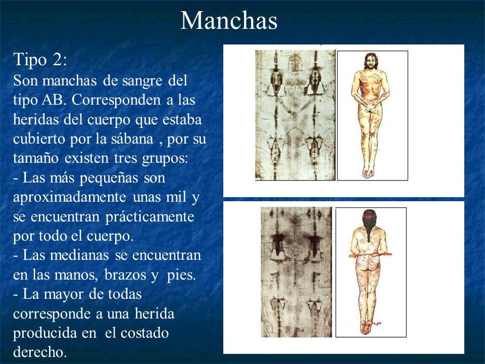 ManchasTipo 2: