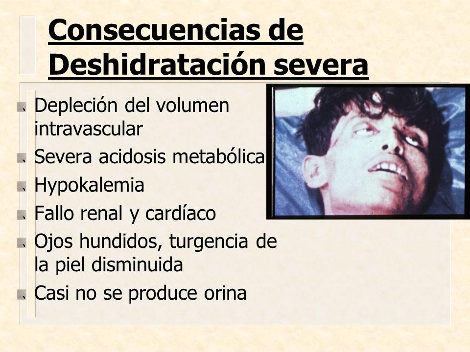 Consecuencias de Deshidratación severa