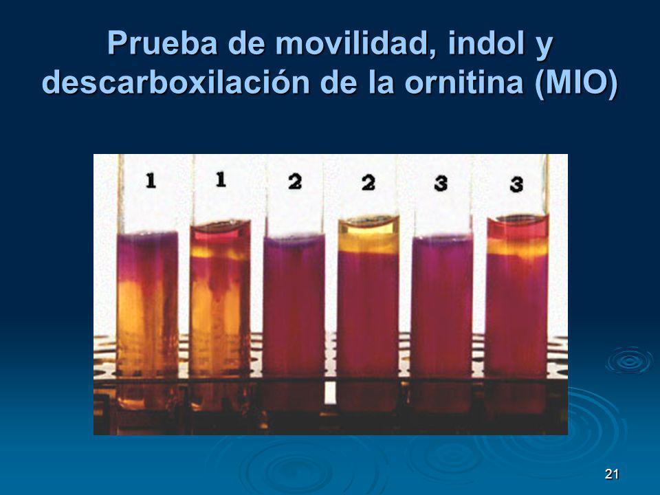 Prueba de movilidad, indol y descarboxilación de la ornitina (MIO)