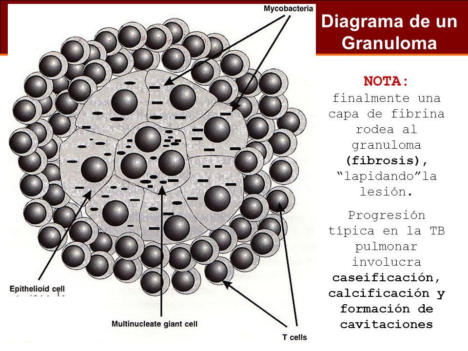 Diagrama de un Granuloma