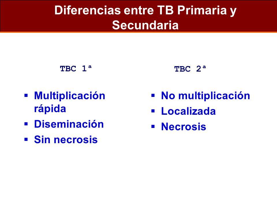 Diferencias entre TB Primaria y Secundaria