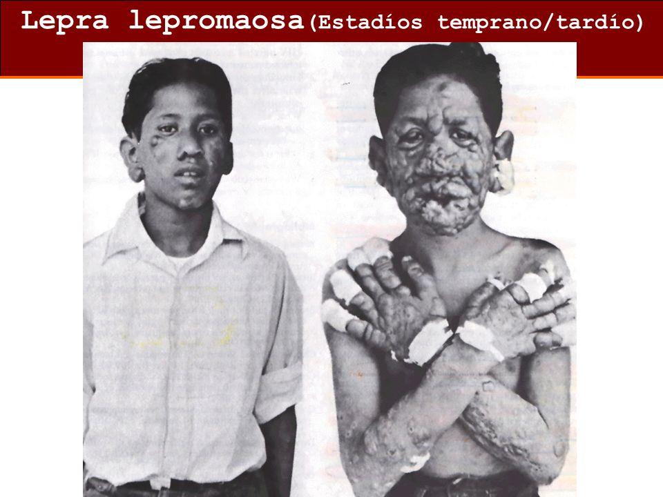 Lepra lepromaosa(Estadíos temprano/tardío)