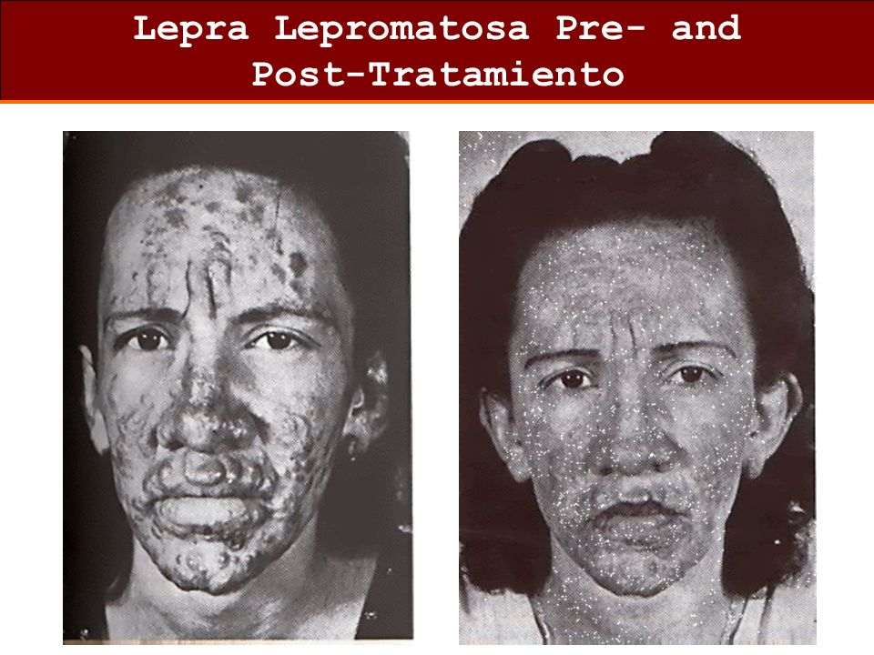 Lepra Lepromatosa Pre- and Post-Tratamiento