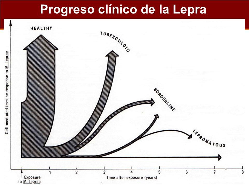 Progreso clínico de la Lepra