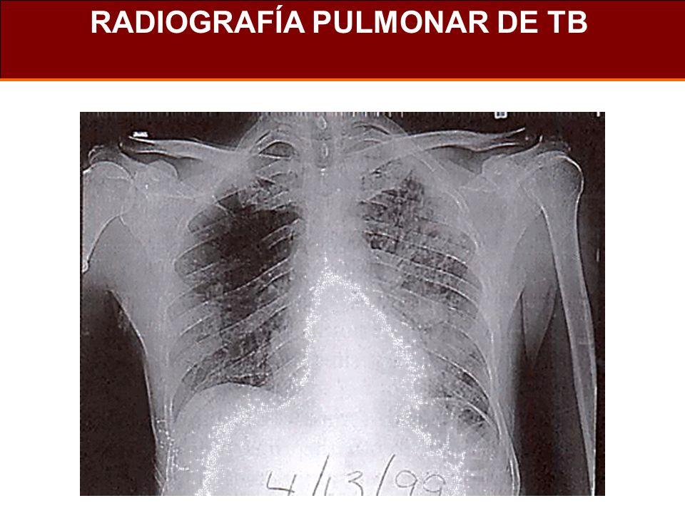 RADIOGRAFÍA PULMONAR DE TB