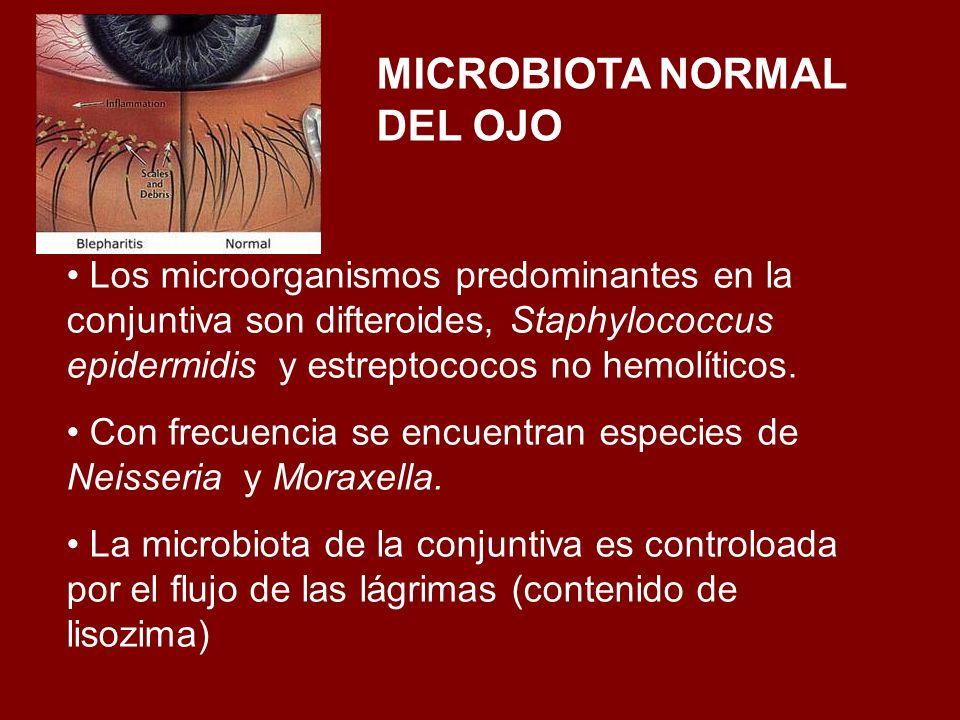 MICROBIOTA NORMAL DEL OJO