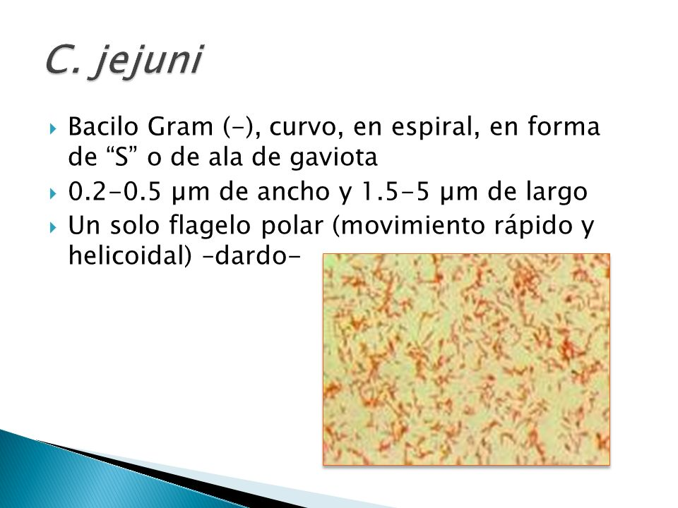 C. jejuni Bacilo Gram (-), curvo, en espiral, en forma de S o de ala de gaviota. 0.2-0.5 µm de ancho y 1.5-5 µm de largo.