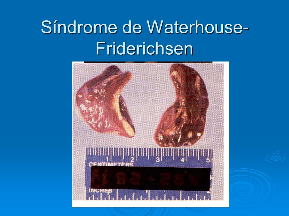 Síndrome de Waterhouse-Friderichsen